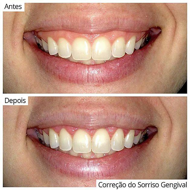 Odontologia Correção sorriso gengival
