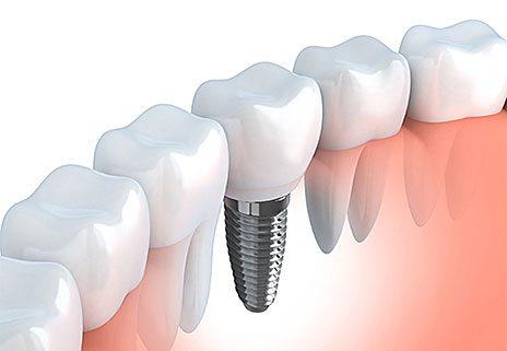 Odontologia Implante Dentário