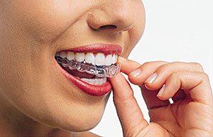 Odontologia Invisalign