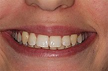 Odontologia Tratamento Ortodôntico