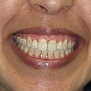 Odontologia Botox
