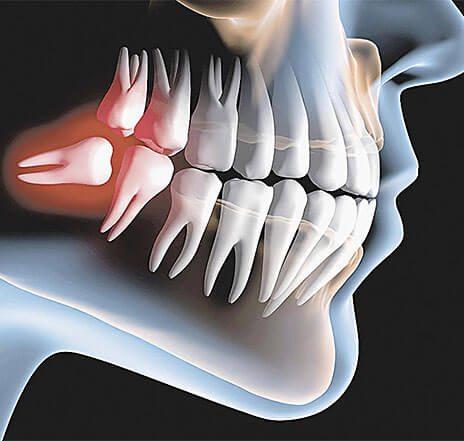 Odontologia Cirurgia dente do siso