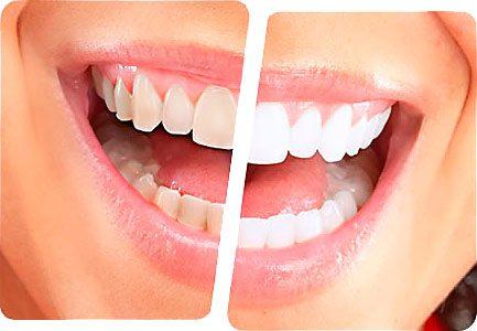 Odontologia Clareamento dentes boca