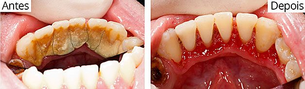 Odontologia Tratamento Periodontia