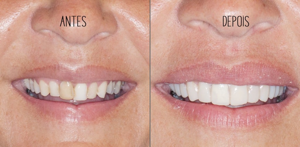 antesdepois dentes