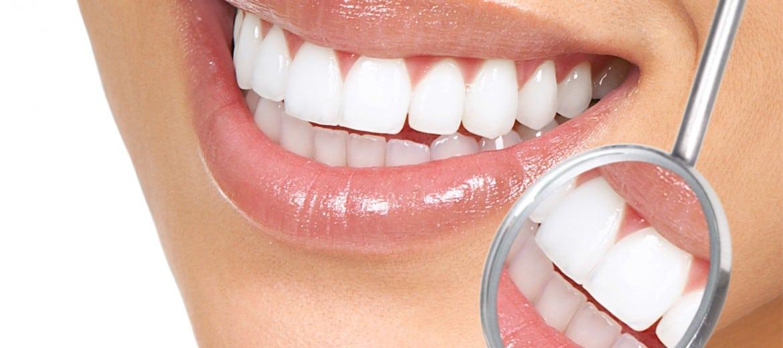 Clareamento Dental Um Guia Completo Sobre O Tema Instituto