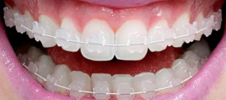 O aparelho de porcelana é transparente e assegura total discrição durante o tratamento.