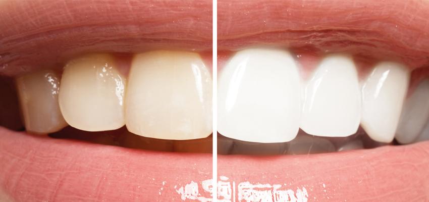 7959f76773575 Lentes de contato dental  o que são