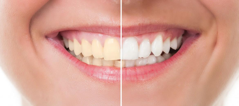 dicas-manter-restaurar-esmalte-dentes