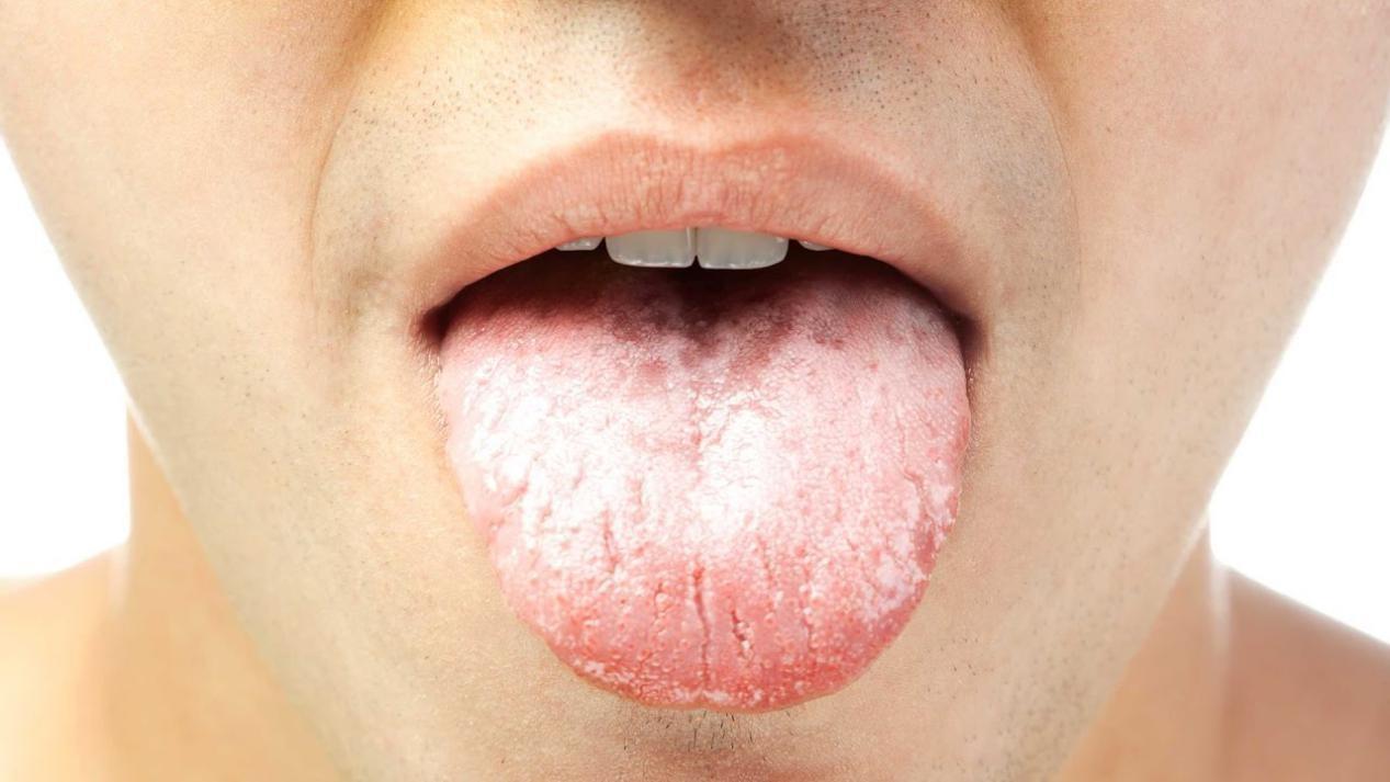 A saburra é um dos motivos para a diminuição do fluxo salival. - Fonte: Instituto Barbosa de Odontologia.